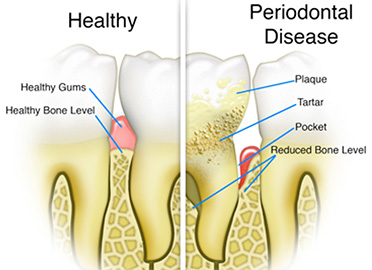 What is gum disease and how is it treated?