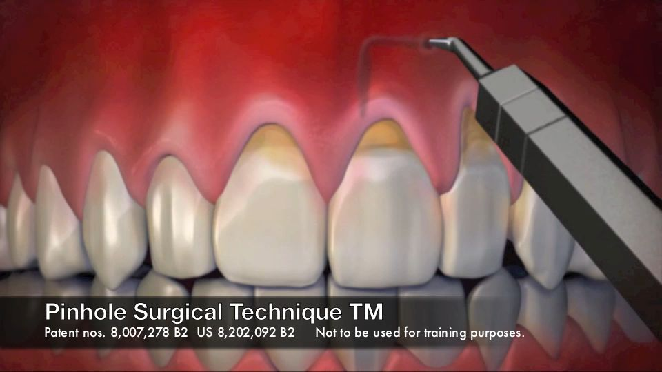 Pinhole Gingival Rejuvenation Surgical Technique